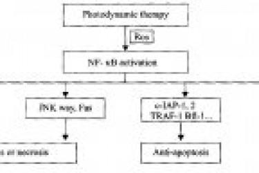 NF-kB在光动力治疗肿瘤中的研究进展