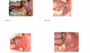PHOTOFRIN光动力疗法治疗浅表性口腔鳞癌的长期随访