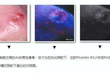局部应用Photofrin®对恶性皮肤肿瘤进行光动力诊断