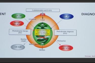 CUOS 2019:光动力疗法治疗膀胱癌——Ib期临床试验的结果