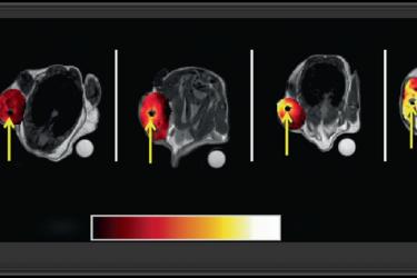 光吸收引起的温升对组织间光动力(I-PDT)治疗小鼠局部晚期肿瘤有重要意义:临床前研究