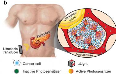 Nature子刊: 超声波驱动的可植入微光源(μLight)用于肿瘤PDT