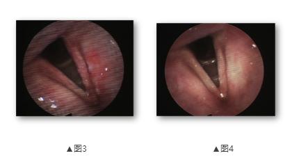病例报告:2例头颈部鳞癌患者的光动力治疗