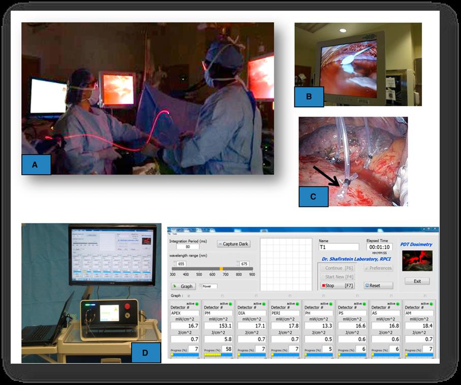 光动力疗法治疗非小细胞肺癌:文献综述